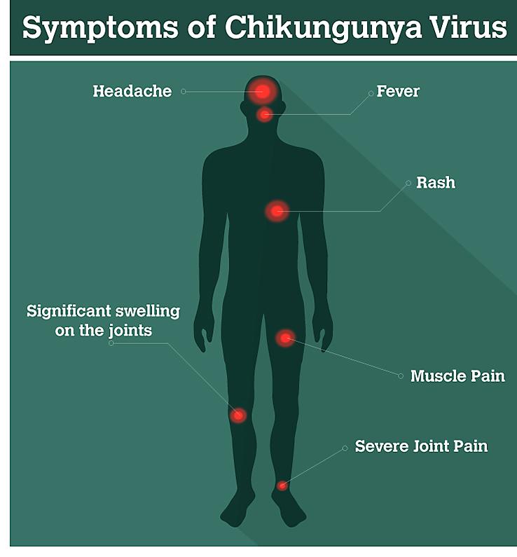 Triệu chứng Chikungunya