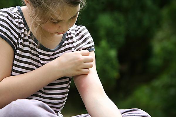trị muỗi đốt, MosquitoMagnet.com